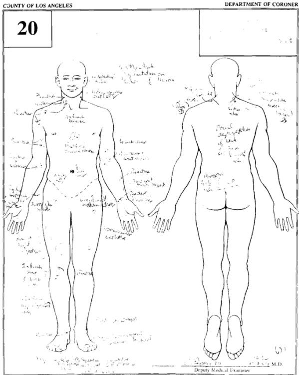 マイケルジャクソンの検死報告書抜粋